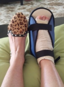My repaired foot and its stylish friend